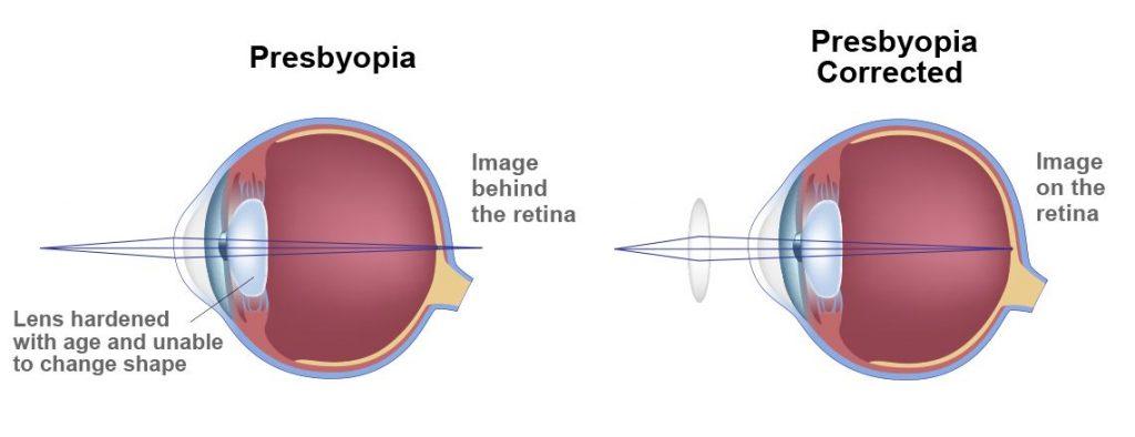 Presbyopia-3