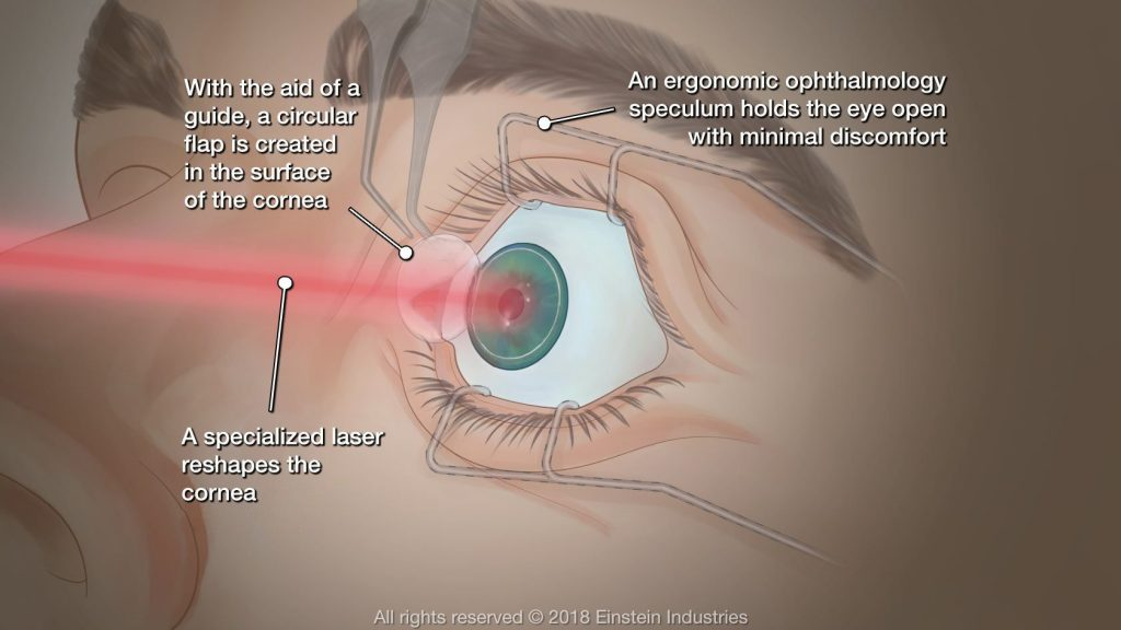 how-long-do-lasik-results-