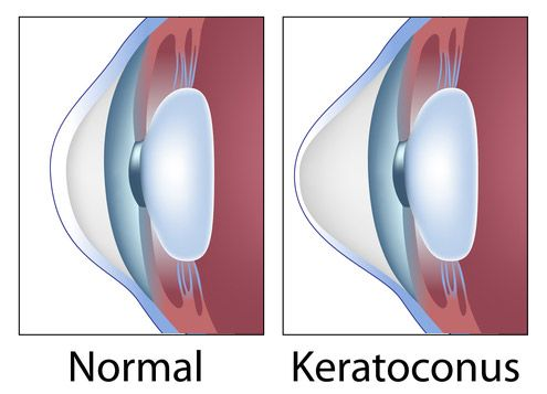 keratoconus-knowing-the-symptoms-can-166285