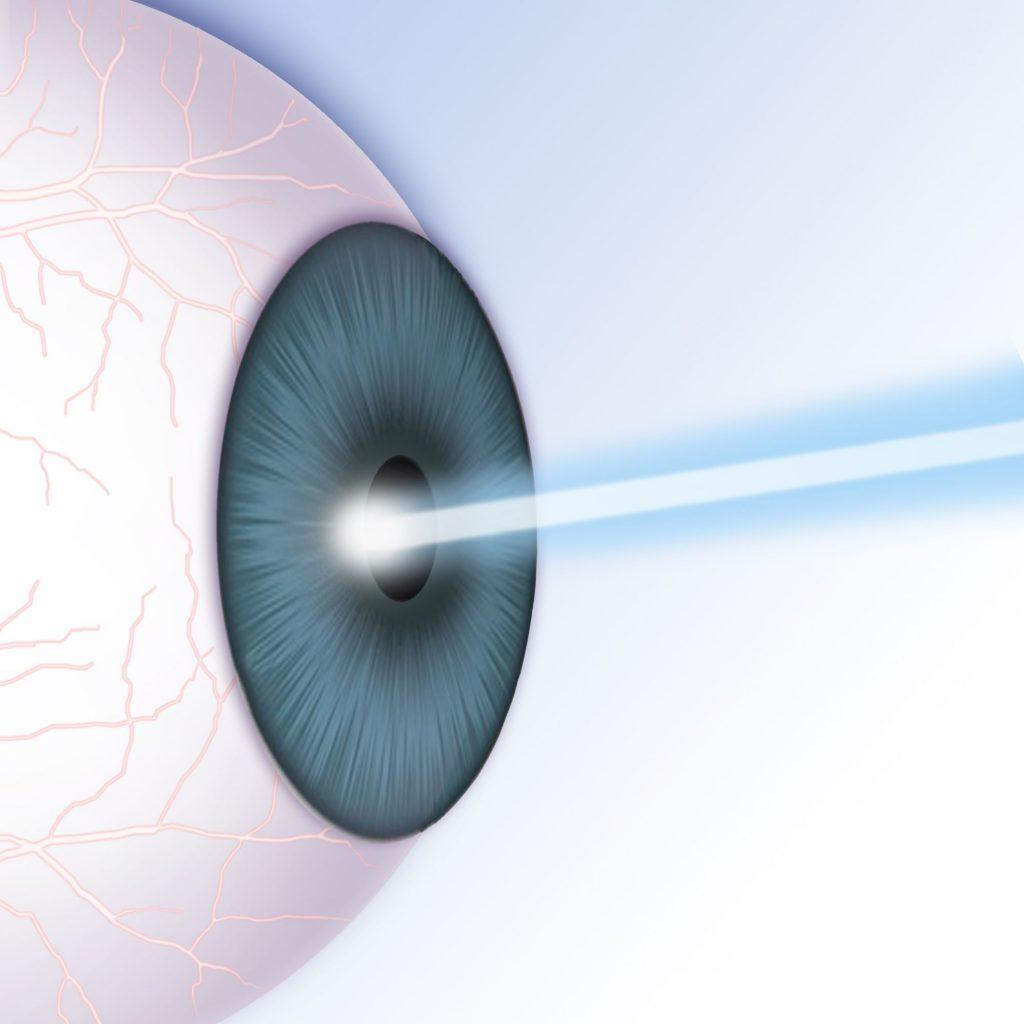 top-benefits-of-femto-lasik-202081